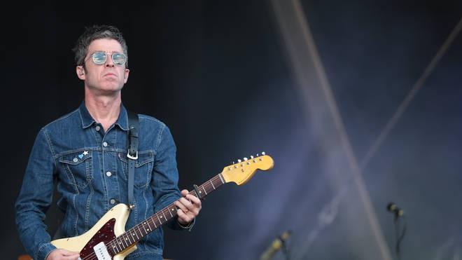 Noel Gallagher ha un problema all'udito, l'acufene
